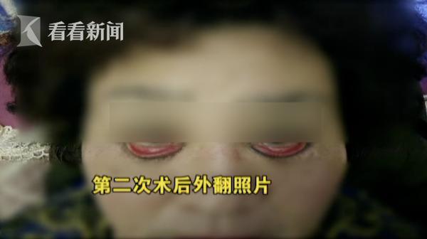 Chẳng ai ngờ rằng, phẫu thuật thẩm mĩ lại khiến đôi mắt trở nên đáng sợ thế này