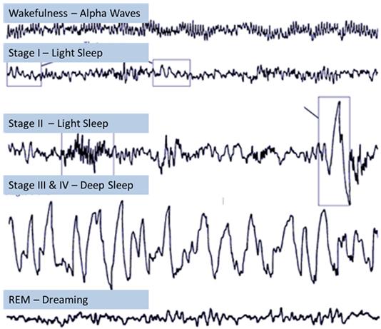 Sóng não qua các giai đoạn của giấc ngủ