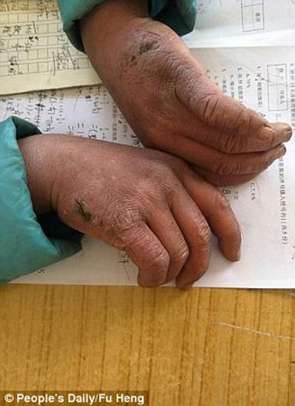 Đôi tay phải làm lụng đồng áng giúp bà của cậu bé 9 tuổi.