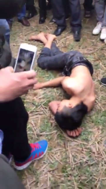 Nam thanh niên rơi vào trạng thái mê man bất tỉnh ngay sau khi được sơ cứu.