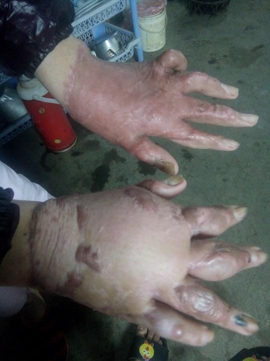Bàn tay chị Trang đã được phẫu thuật tay nhưng vẫn khó khăn trong việc cầm, nắm (ảnh nhân vật cung cấp)