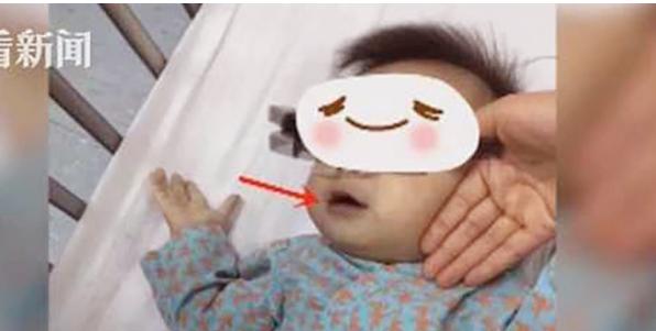 Hai bé sinh đôi 10 tháng tuổi suýt tử vong vì mẹ cho uống loại nước này
