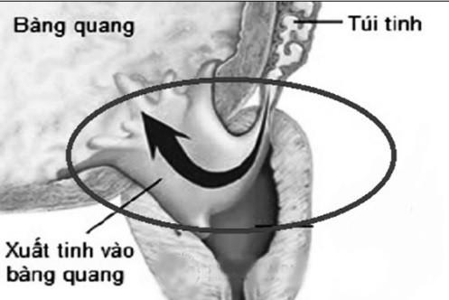 Xuất tinh ngược - một rối loạn tình dục ở bệnh nhân đái tháo đường