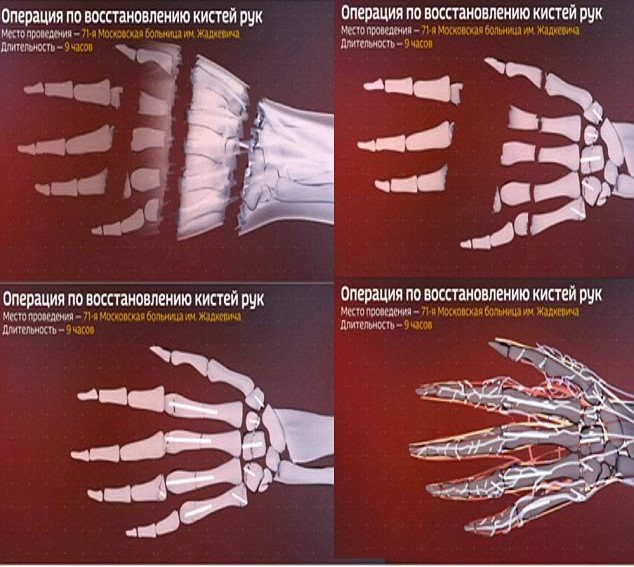 Ảnh chụp X-quang cánh tay bị cưa thành nhiều đoạn của Margarita
