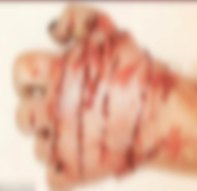 Cánh tay chằng chịt những vết khâu của cô gái trẻ