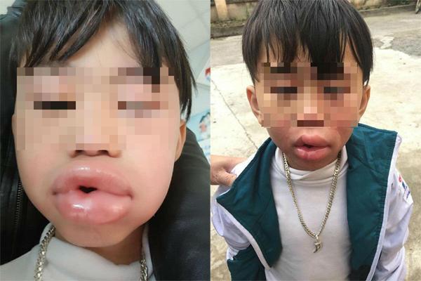 Bé 6 tuổi môi sưng phồng, phải nhập viện cấp cứu sau 3 phút ăn kẹo mua ở cổng trường