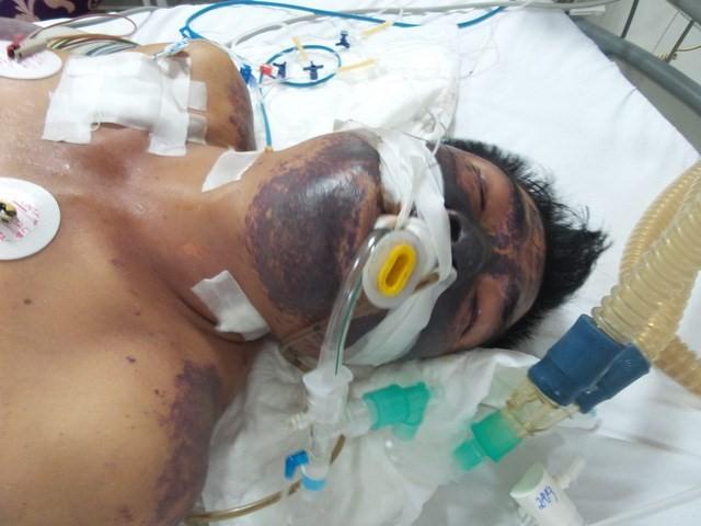 Một bệnh nhân nhiễm liên cầu lợn phải thở máy. Ảnh: TL