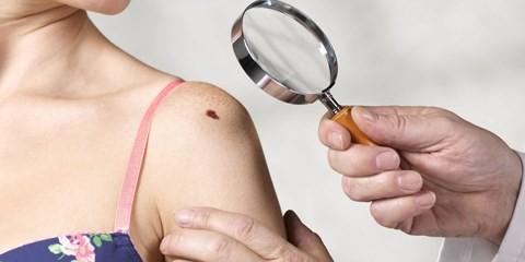 Cảnh báo ung thư từ những nốt ruồi lạ