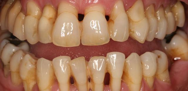(Điều trị bệnh nha chu làm mất răng)