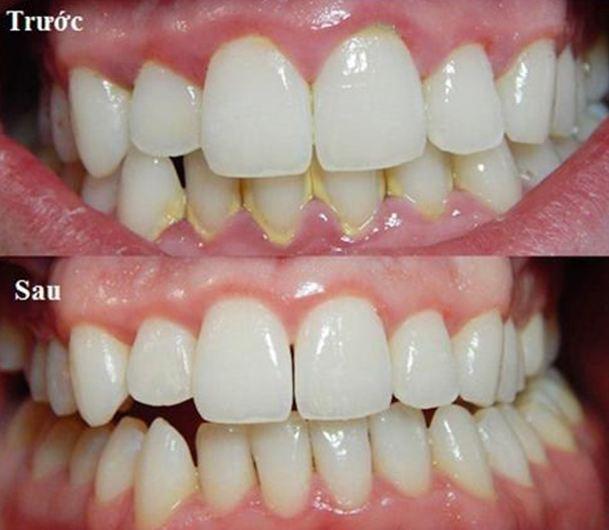 (Cạo vôi răng điều trị nha chu)