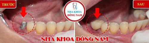(Cấy ghép răng Implant khi răng không còn giữ được nữa)