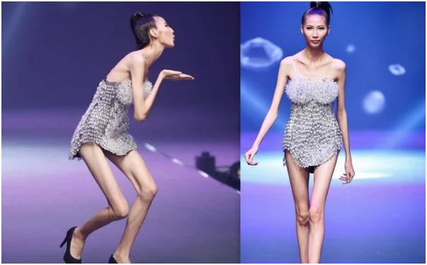 """Người mẫu Cao Ngân từng gây sốc với hình ảnh """"bộ xương di động"""" bây giờ ra sao?"""