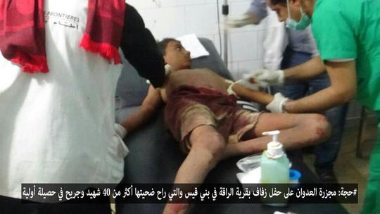 Nhiều nạn nhân trong vụ không kích là trẻ em. Ảnh Yemen Press
