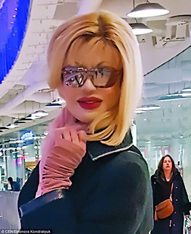 Người đẹp Nga bị tạt axit xuất hiện sau 200 cuộc phẫu thuật