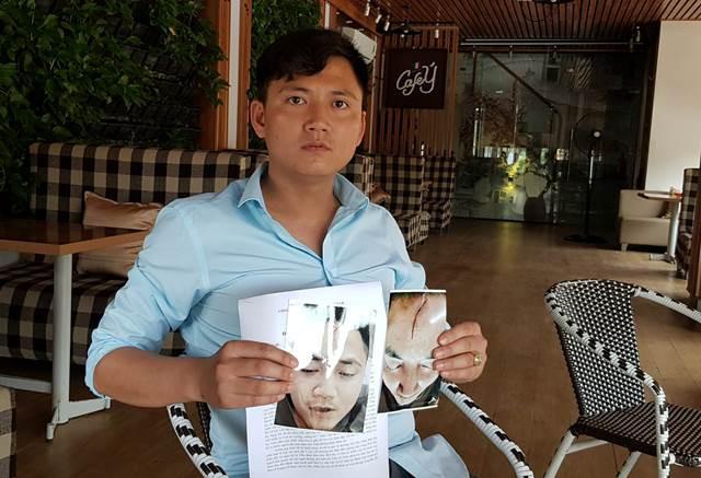 Hà Nam: Trên đường đưa con đi khám bệnh, ông bố bị 2 thanh niên hành hung