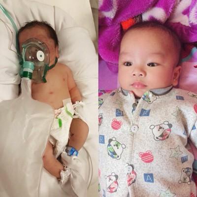 Bé Bình lúc chào đời và khi được 3 tháng tuổi.