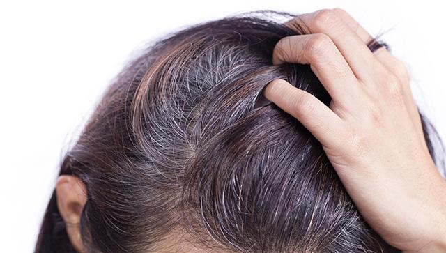 Tóc bạc sớm gây nhiều phiền toái trong cuộc sống