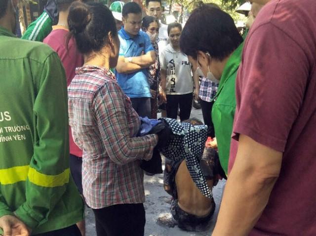 Nạn nhân được đưa vào bệnh viện cấp cứu trong tình trạng bỏng nặng. Ảnh: Hoàng An