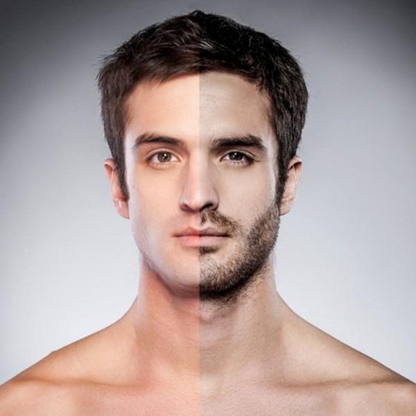 Cấy râu hay lông ngực đang trở thành trào lưu làm đẹp của nam giới. Ảnh minh họa