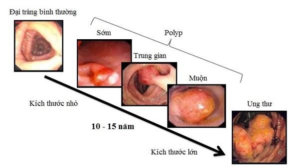 Ung thư đại trực tràng đứng hàng thứ 5 trong các loại ung thư tiêu hóa hiện nay.