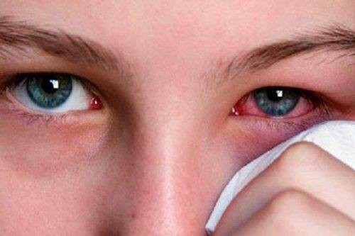Theo các chuyên gia nhãn khoa, cần vệ sinh mắt hàng ngày bằng nước muối sinh lý nhằm bảo vệ mắt, rửa trôi bụi bẩn… giúp làm ẩm mắt, chống khô mắt. Ảnh: TL