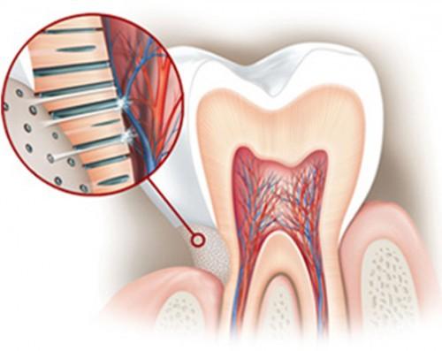Sói mòn men răng khiến răng nhạy cảm. Ảnh minh họa