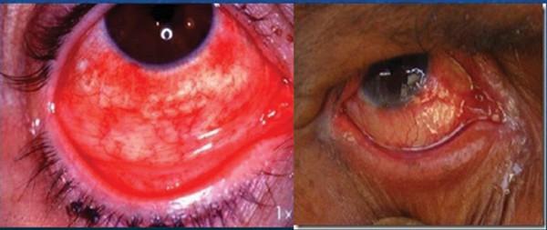 Chlamydia - nguyên nhân rất quan trọng gây mù lòa