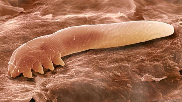 Con ký sinh trùng Demodex phóng đại dưới kính hiển vi.