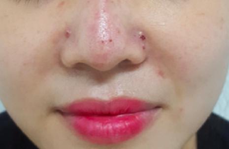 Sau khi tiêm vài giờ, bệnh nhân xuất hiện bầm tím vùng đỉnh mũi, đau tức mũi nhẹ