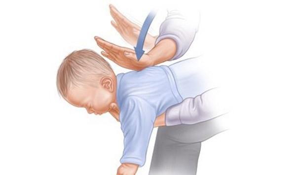 Một tay giữ bé, một tay dùng lòng bàn tay vỗ thật mạnh 5 – 7 cái vào lưng bé, chỗ giữa hai xương bả vai.