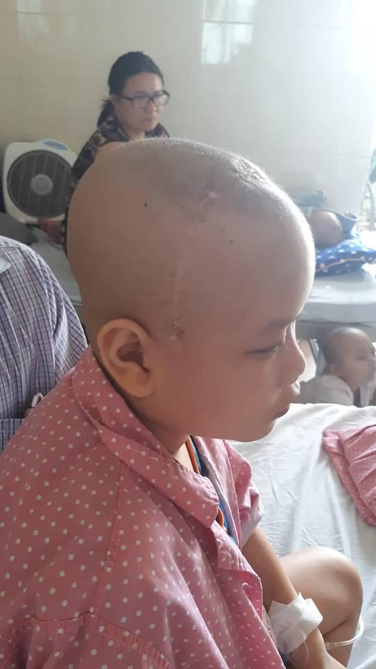 Vết sẹo dài trên đầu bé Đạt sau ca phẫu thuật. Ảnh PT