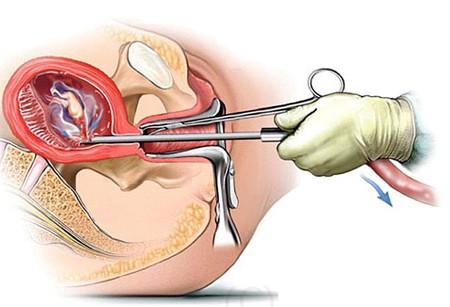 Nạo hút thai có thể dẫn đến vô sinh và nhiều hậu quả nặng nề khác.