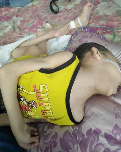 Căn bệnh bại liệt từ bé cộng với những cơn sốt cao khiến cháu Lê Xuân Huy chỉ còn nặng 15kg.