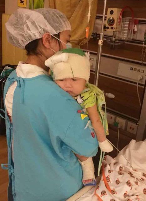 Bé Quyết 8 tháng tuổi trải qua 6 lần phẫu thuật.     Ảnh: T.G