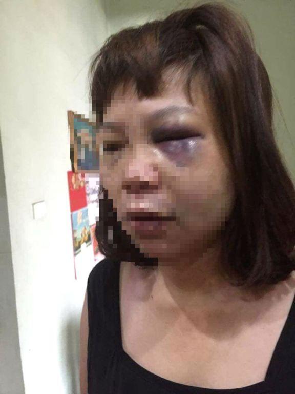 Mặt và mắt chị H. bị sưng tím sau khi bị chồng bạo hành