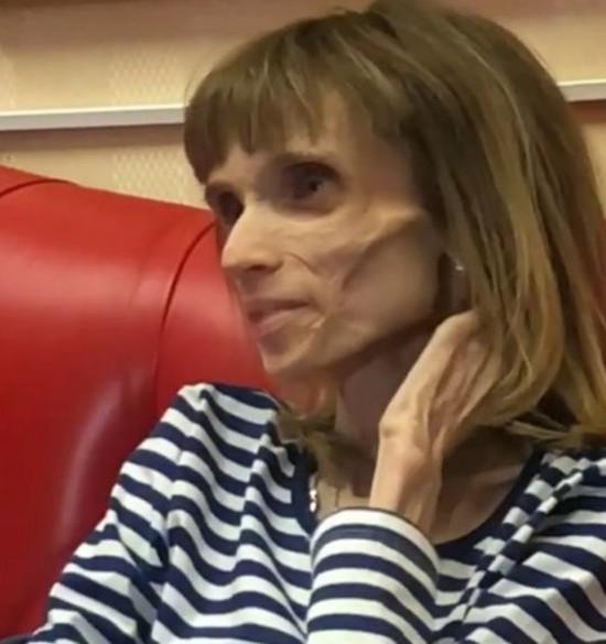 Cô gái người Nga đã sống với căn bệnh biếng ăn cả chục năm. Ảnh: CEN.