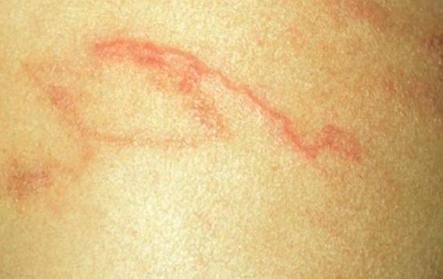 Gần đây, bà N hay bị ngứa, có nhiều nốt sẩn ngoằn ngoèo dưới da