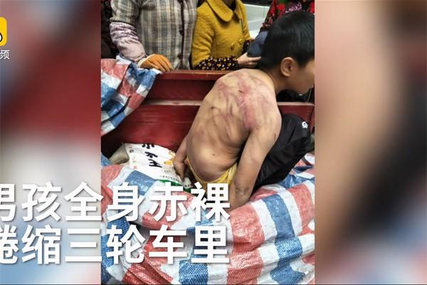 Bị bố mẹ đánh tím người, bé 10 tuổi mình trần ngủ dưới trời lạnh âm 2 độ