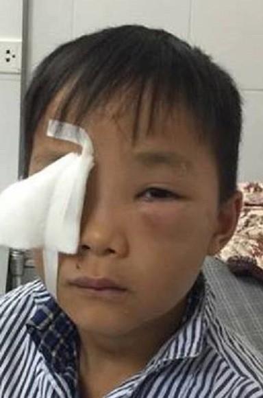 Cháu Trần Thanh Quang bị chó cắn, gây nguy hiểm cho mắt.