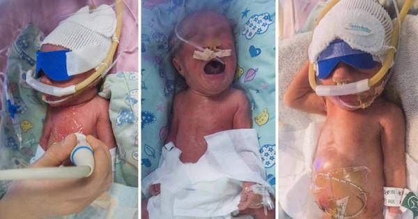 Ba em bé đang được chăm sóc trong khoa sơ sinh bệnh viện Nhi Tứ Xuyên. Ảnh: Rex
