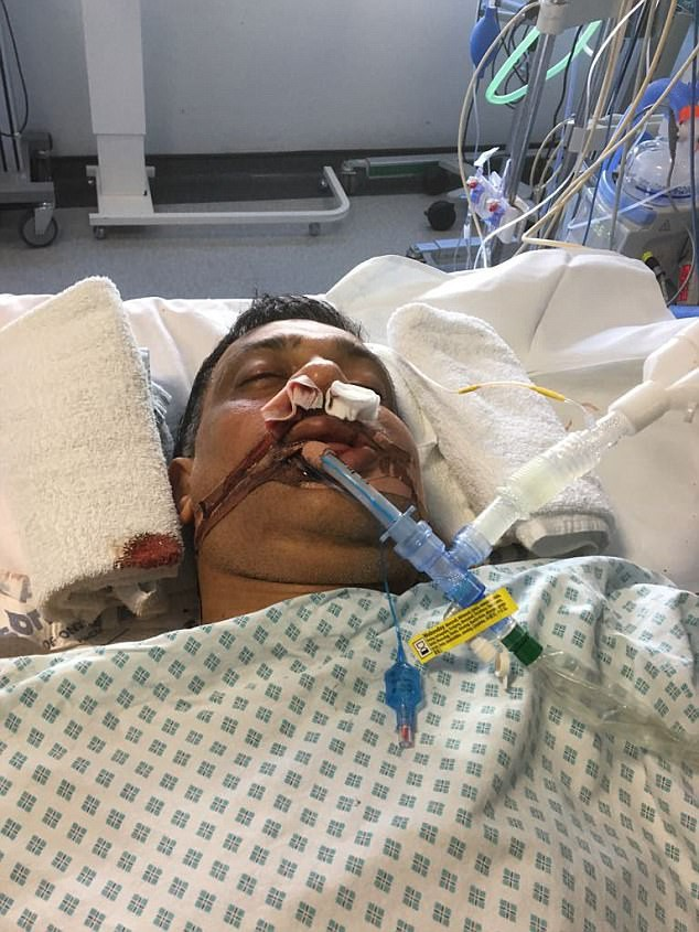 Nạn nhân bị đánh nhiều lần vào ngực, ngã đập đầu ra sau, gây nên vết thương chí mạng ở đầu (Ảnh: Internet)