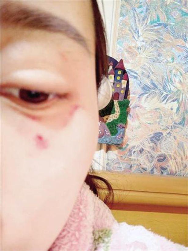 Cô Li nhập viện với một vài vết thương nhẹ ở vùng mặt.