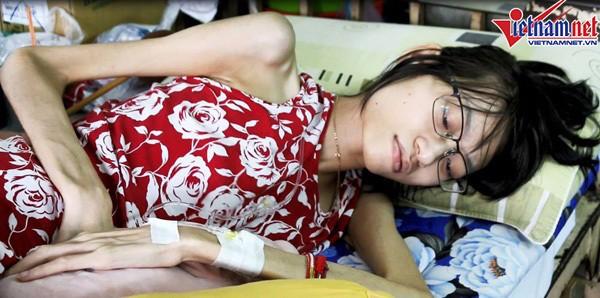 Cơ thể gày gò của Kim Anh sau thời gian điều trị bệnh.