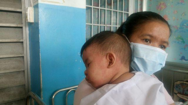 Một em bé bị sởi điều trị ở TP HCM. Ảnh: Dantri