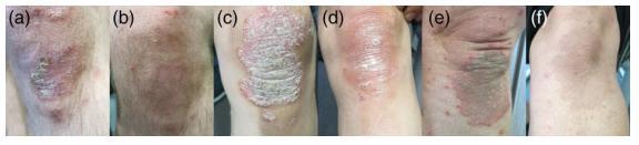 Hình ảnh trước và sau 8 tuần sử dụng sản phẩm thảo dược Dr Michaels cho bệnh vẩy nến.