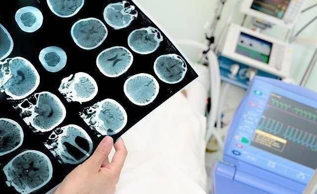 Bác sĩ kết hợp các triệu chứng lâm sàng và xem xét ông Phó bị nhồi máu não, chụp CT não không thấy xuất hiện chảy máu.