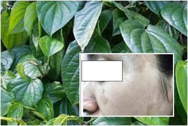 Làn da bị tổn thương khi đắp lá trầu không. Ảnh: T.L
