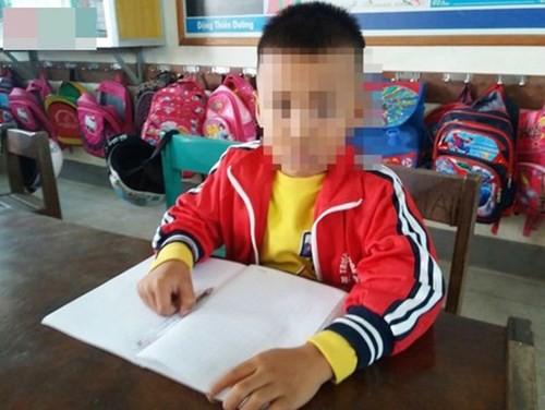 Em T.N.H. trường Tiểu học số 1 Hồng Thủy bị cô giáo tát chỉ vì làm cả hai đề kiểm tra. Ảnh: TL