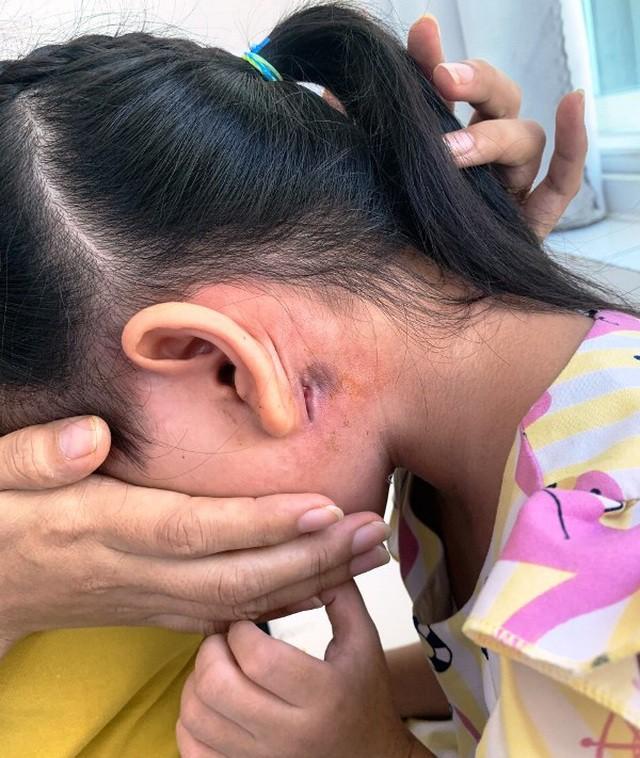 Bé 5 tuổi bị nhiễm vi khuẩn Whitmore  - Ảnh 1.