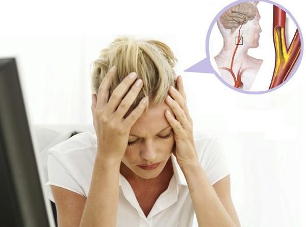 Vì sao nhiều người hay bị đau đầu khi thay đổi thời tiết?